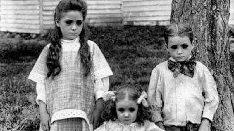 black-eyed-childrens-la-gi